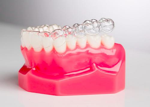 What are Clear Dental Aligners?